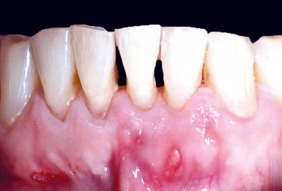 botiss cerabone and mucoderm for bone regeneration and implant supported rehabilitation of a periodontally involved incisor - clinical case