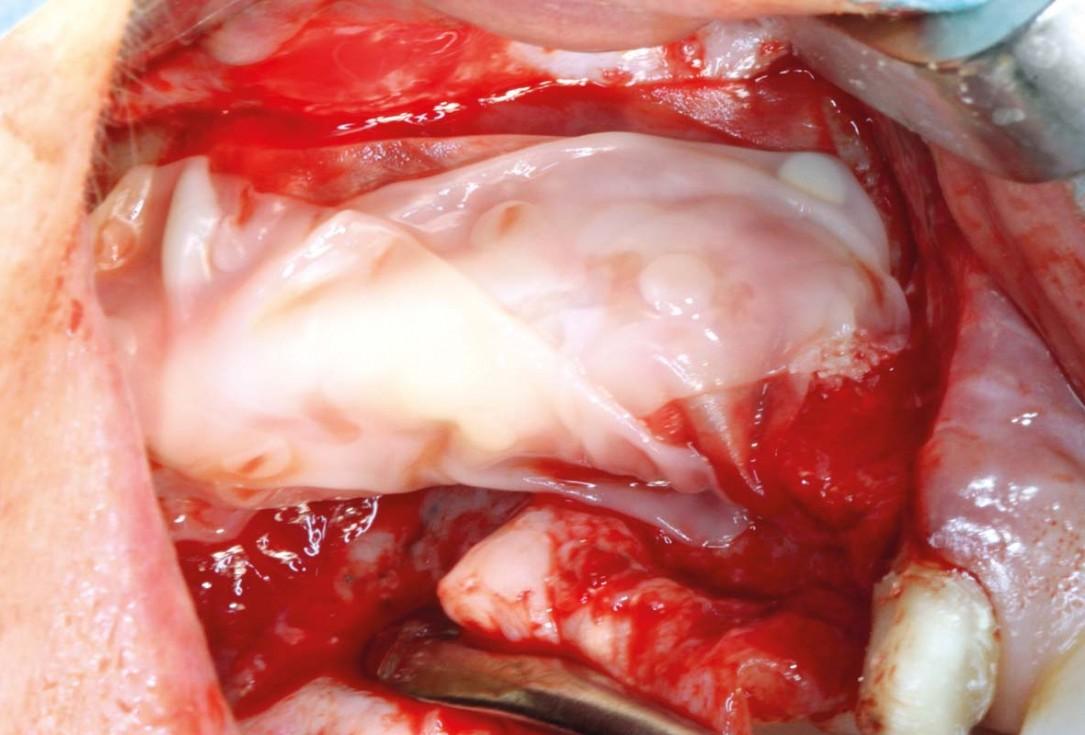 botiss maxgraft® bonebuilder and vestibuloplasty with mucoderm® for ridge augmentation - Clinical case