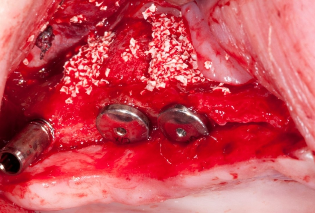 Vertical augmentation and sinus lift with maxgraft® bonering - Dr. O. Yüksel and Dr. B. Giesenhagen