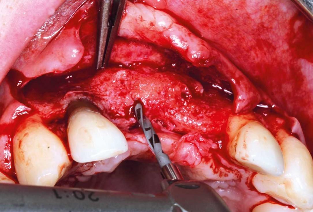 Ridge augmentation in the maxilla with maxgraft® bonebuilder in the aesthetic zone - Dr. M. Kristensen