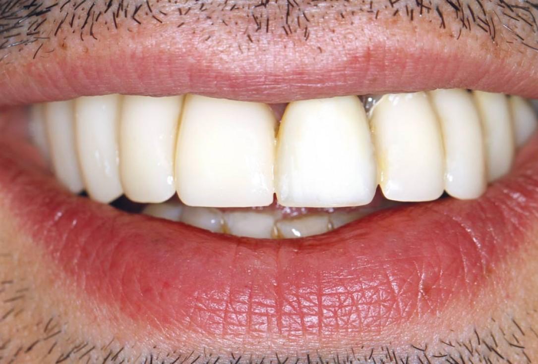 botiss maxgraft® bonebuilder for atrophic maxilla reconstruction - Clinical case