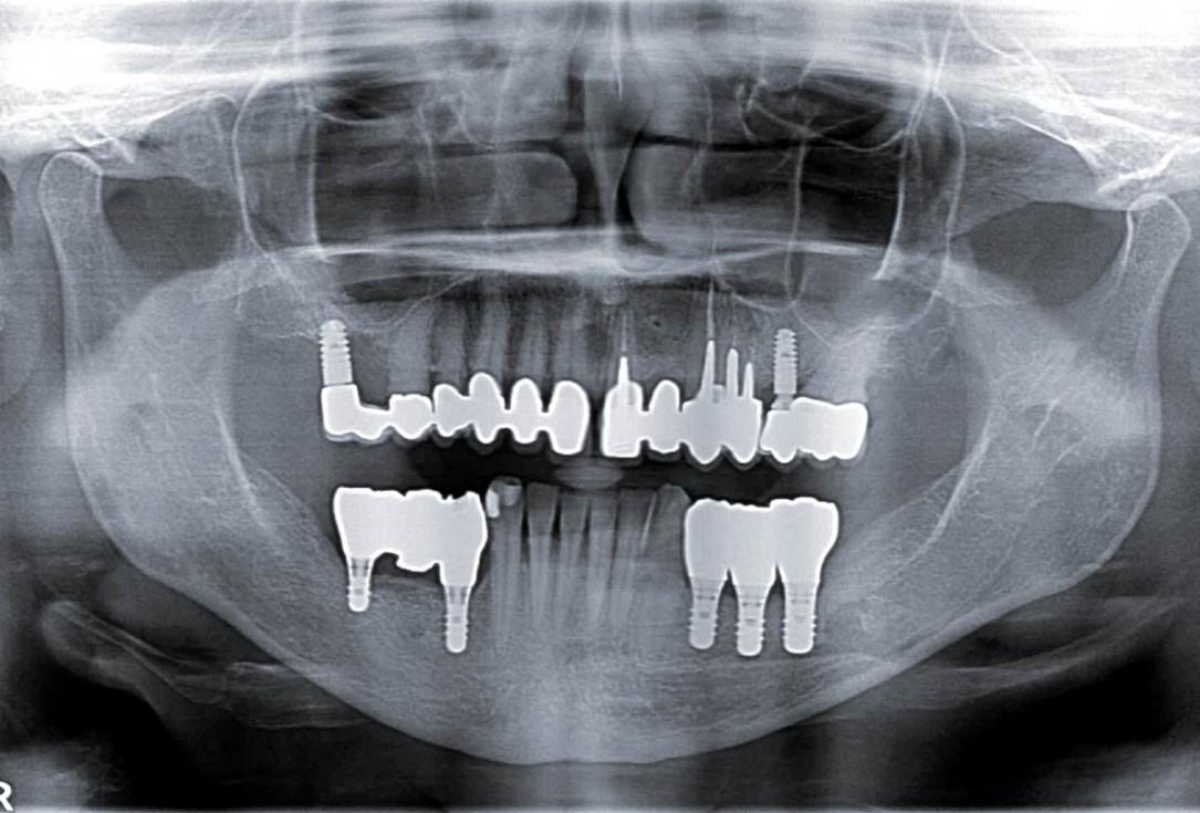 botiss maxgraft® bonebuilder for mandibular reconstruction - Clinical case