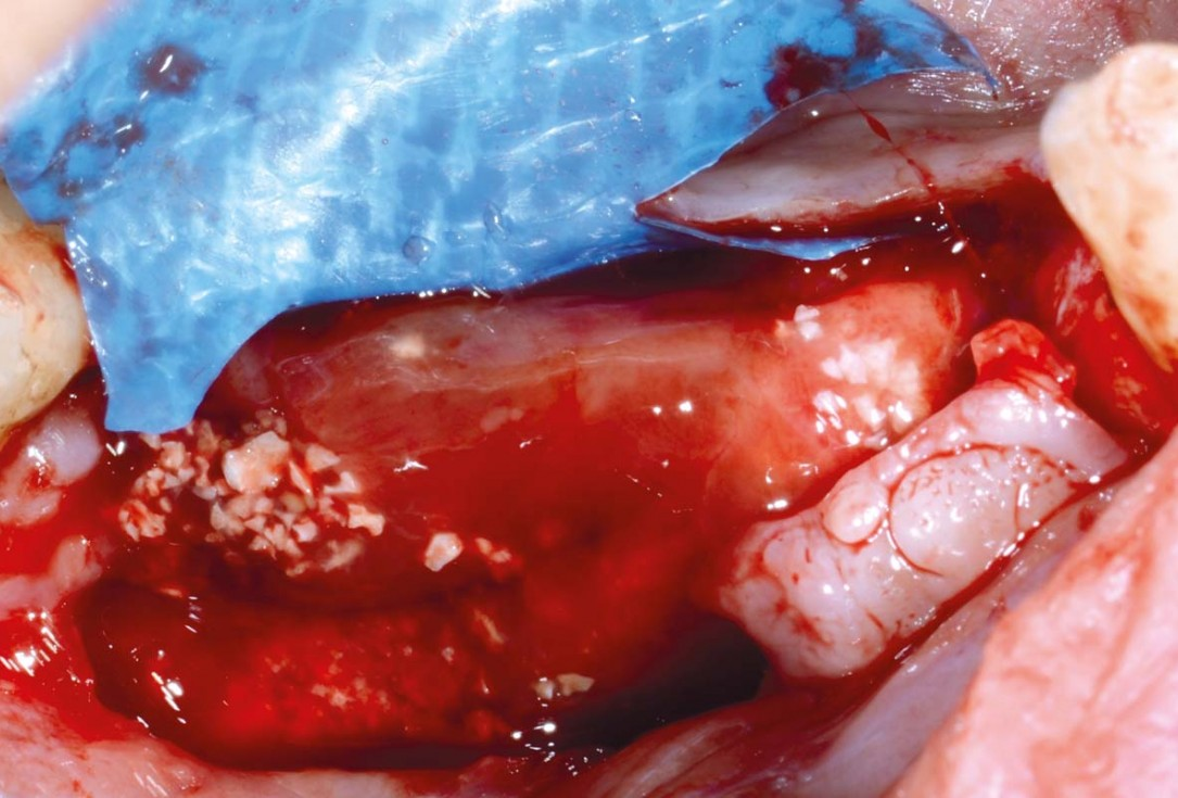 Vertical bone augmentation and broadening of attached gingiva using cerabone, permamem and mucoderm  -  Dr. R. Naimoli