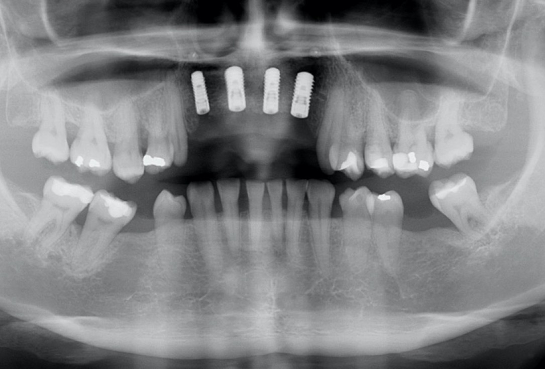 botiss maxgraft® bonebuilder aesthetic reconstruction - Clinical case