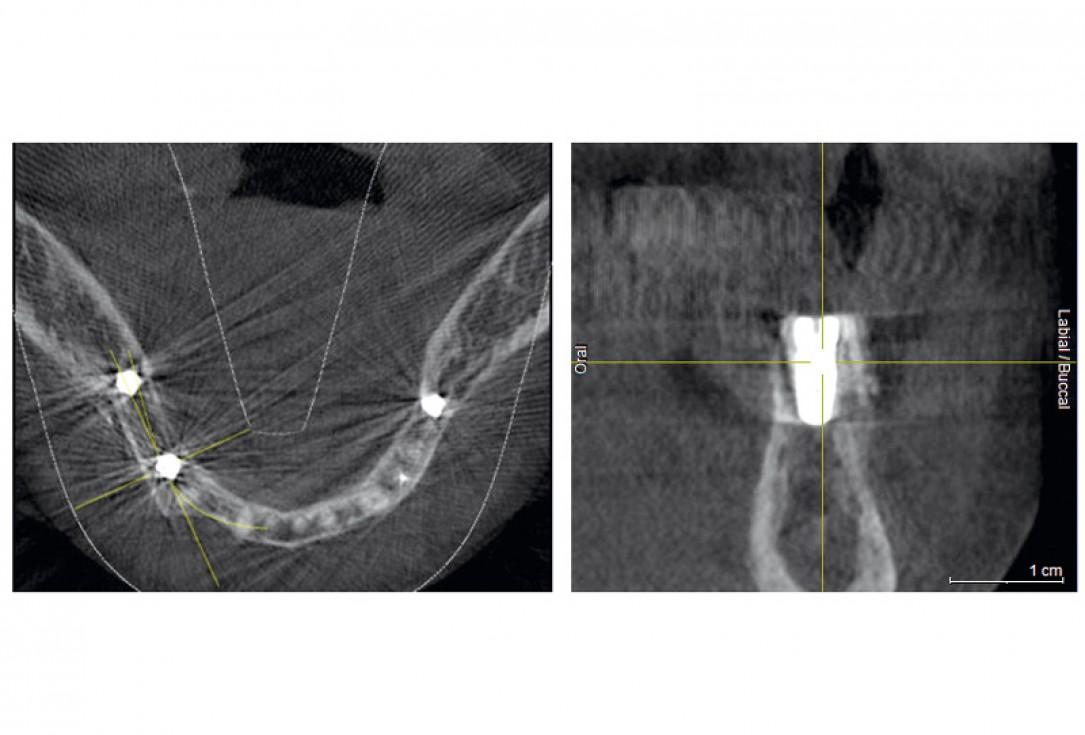 Horizontal ridge augmentation with maxgraft® cortico - M.Sc. E. Kapogianni
