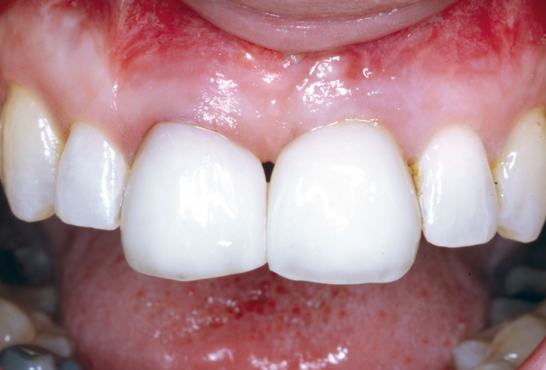 Block grafting in the aesthetic zone with maxgraft®, Jason® membrane and cerabone® - Dres. H. Maghaireh and V. Ivancheva