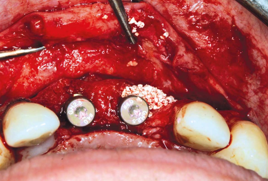 Ridge augmentation in the maxilla with maxgraft® bonebuilder in the aesthetic zone - Dr. M. Kristensen