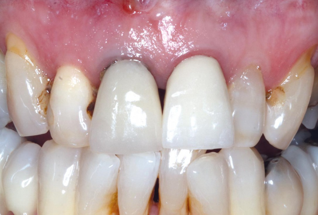 Immediate implants in teeth number 12 and 11, with dual zone grafting using maxgraft® granules - Dr. A. Jones