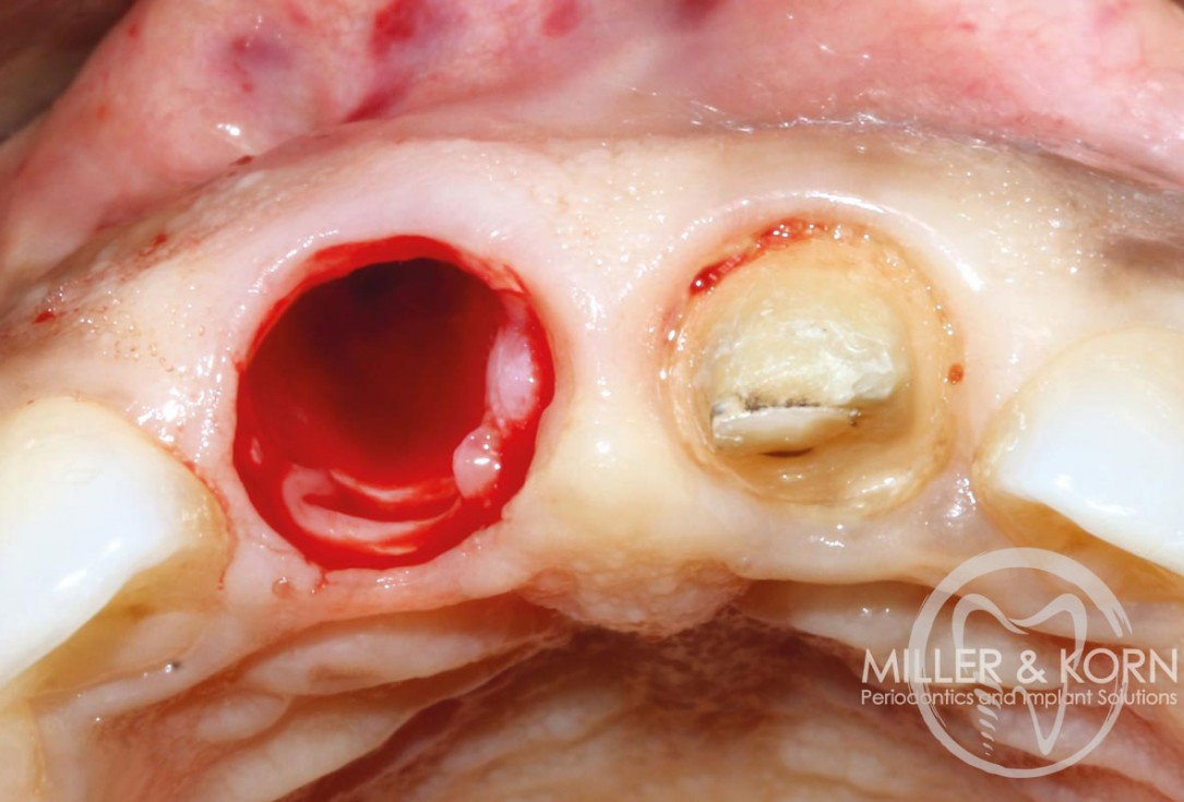 Immediate implant placement and regeneration of ridge using an allograft bone ring and Jason® membrane - Drs. Miller and Korn