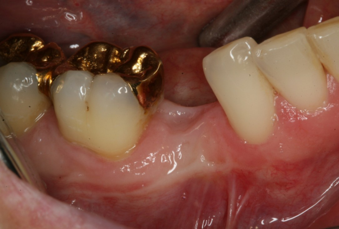 GBR with maxresorb® and collprotect® membrane - Dr. G. Bayer