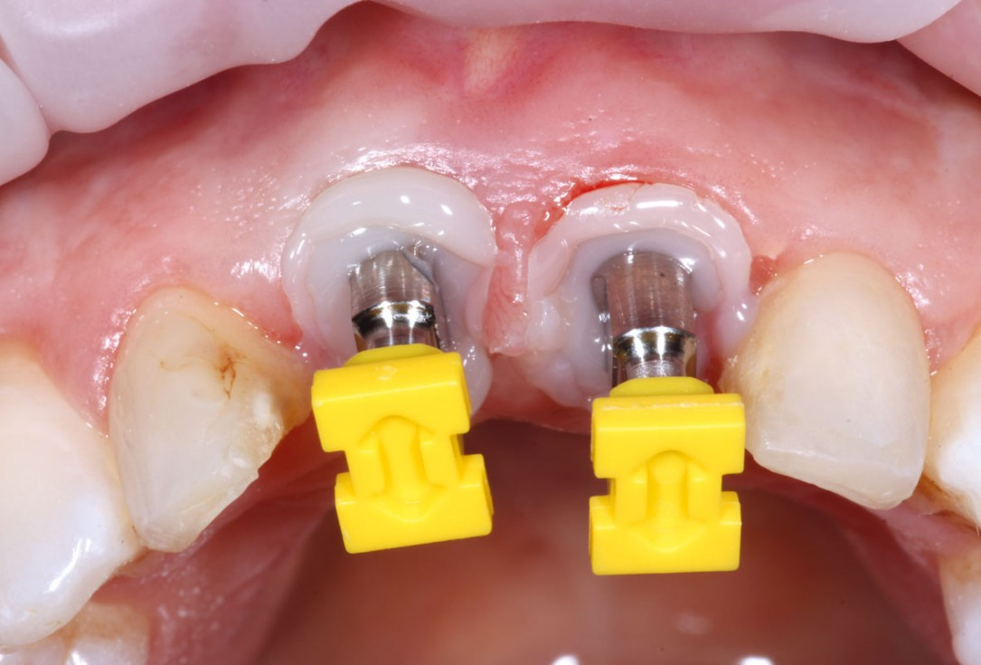 GBR in aesthetic zone with cerabone® and Jason® membrane -Dr. R. Cutts