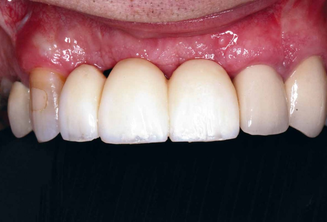 GBR and soft tissue augmentation with cerabone® and mucoderm® - H. Maghaireh & V. Ivancheva