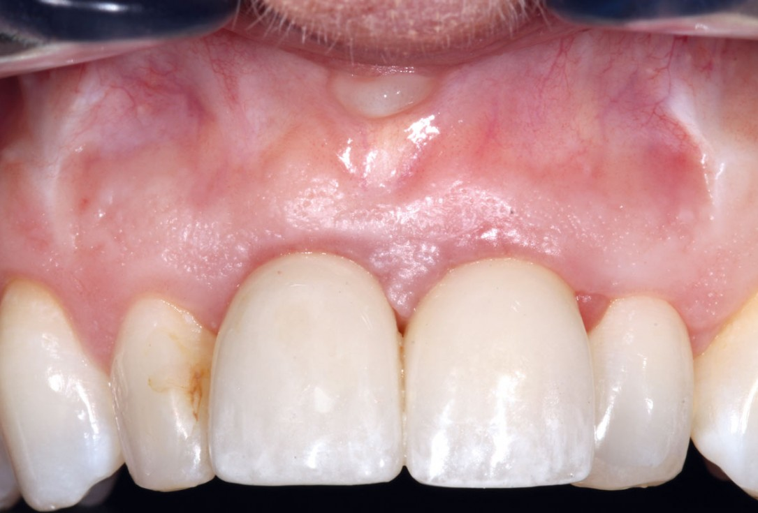 GBR in aesthetic zone with cerabone® and Jason® membrane - R. Cutts