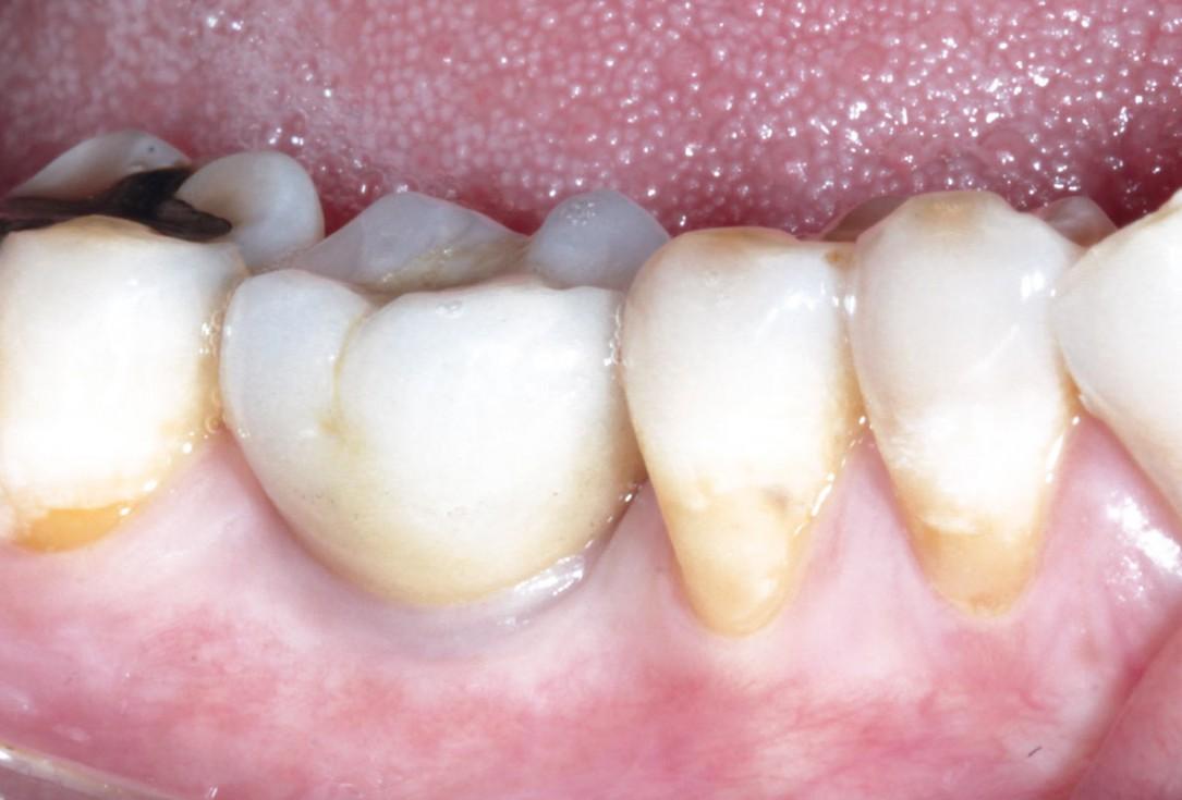 Immediate implant placement using maxresorb® - Dr. Alejandro Signorio
