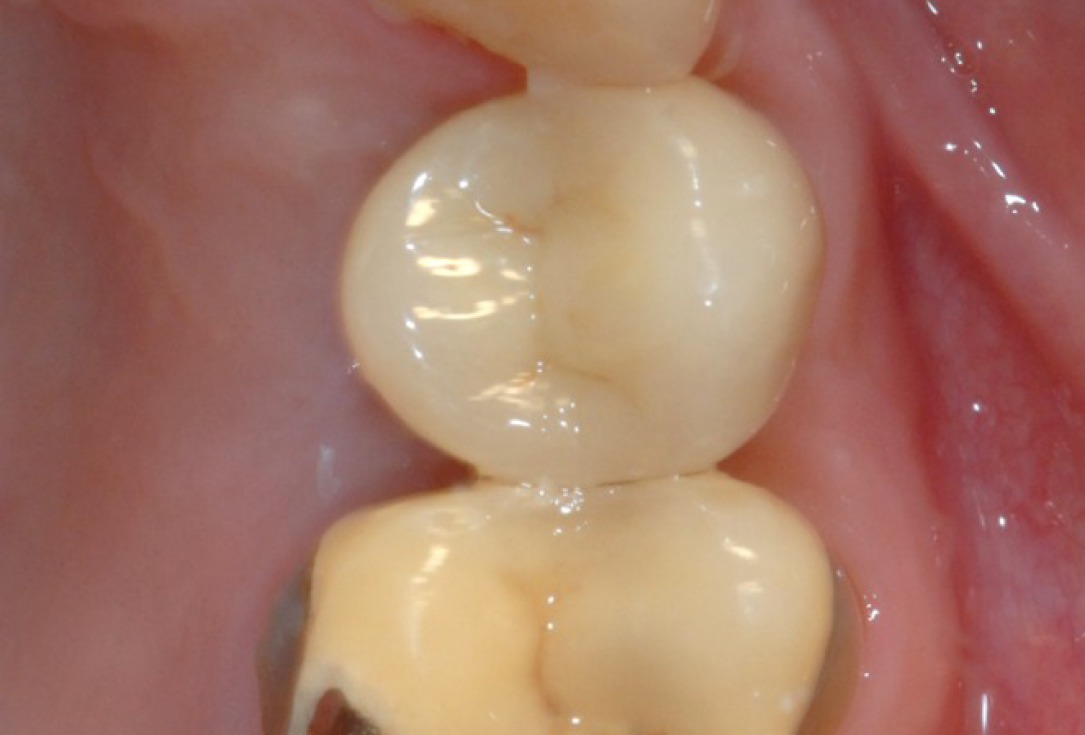 Ridge preservation with cerabone® and Jason® membrane - Dr. Derk Siebers