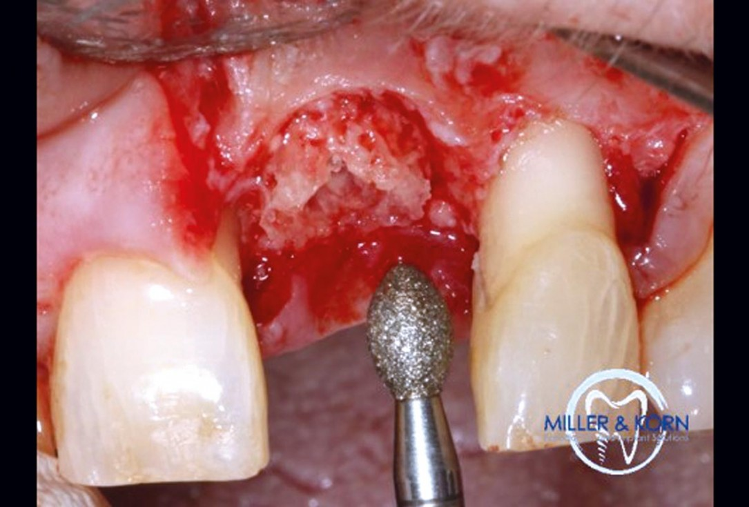 Immediate implant placement and correction of horizontal and vertical bone loss using an allograft bone ring, cerabone® and Jason® membrane - Drs. Miller and Korn