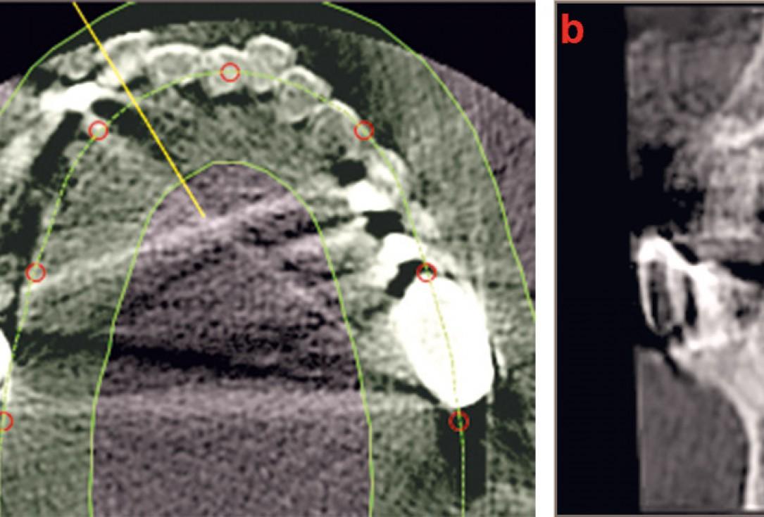 Three-dimensional augmentation with maxgraft® cortico - M.Sc. E. Kapogianni