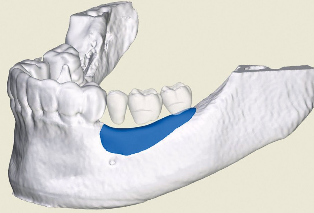 Ridge augmentation in the mandible with maxgraft® bonebuilder in a free-end situation - Dr. Dr. Dr. O. Blume