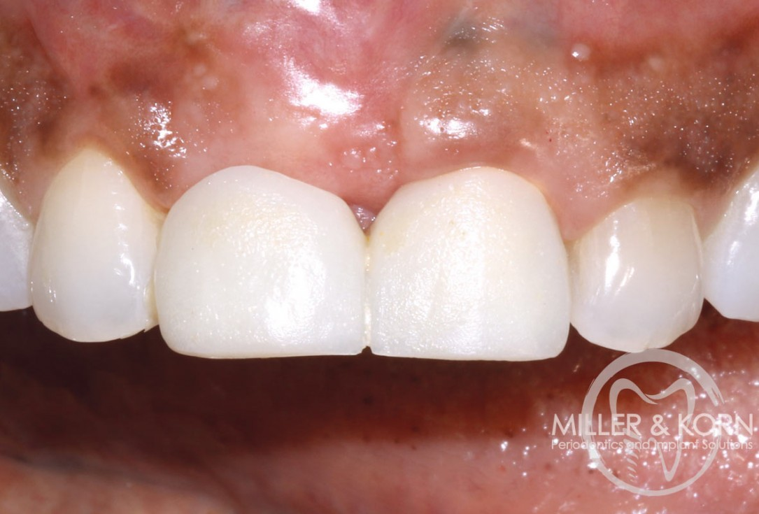 Immediate implant placement and regeneration of ridge using an allograft bone ring and Jason® membrane - Dr. Miller and Korn