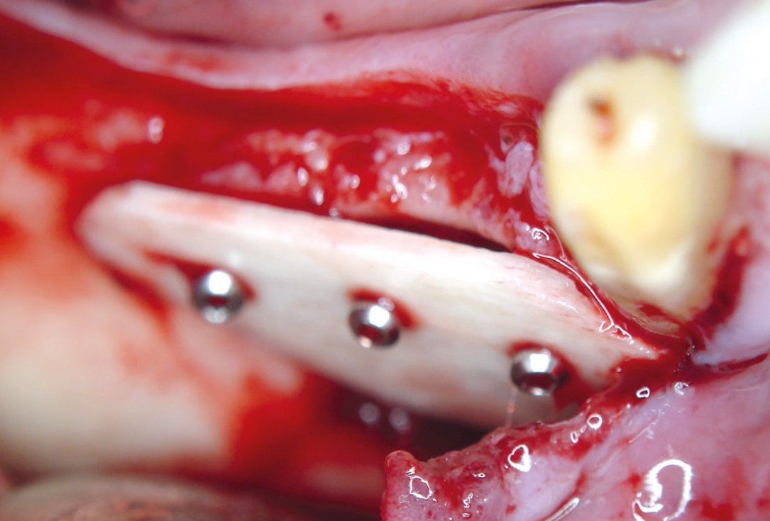 Horizontal ridge augmentation with maxgraft® cortico - M.Sc. E. Kapogianni