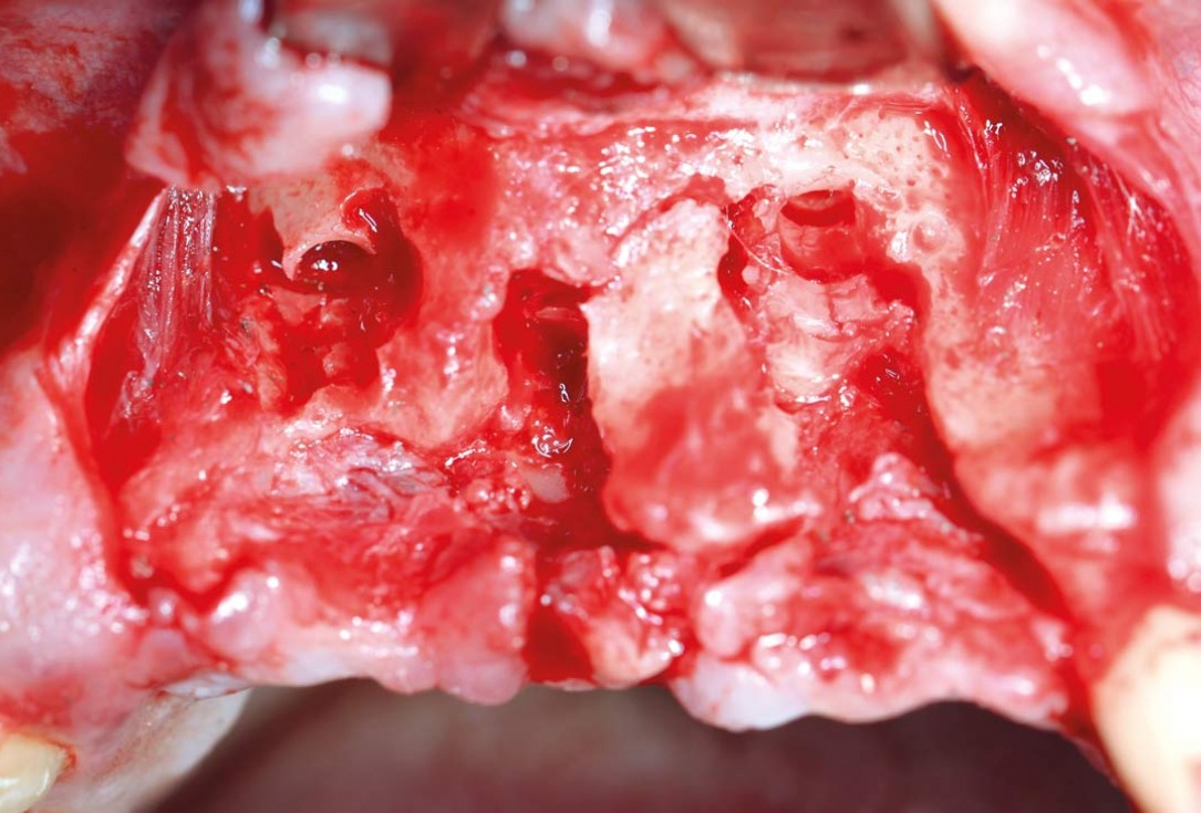 botiss maxgraft® bonebuilder aesthetic reconstruction - Clinical case