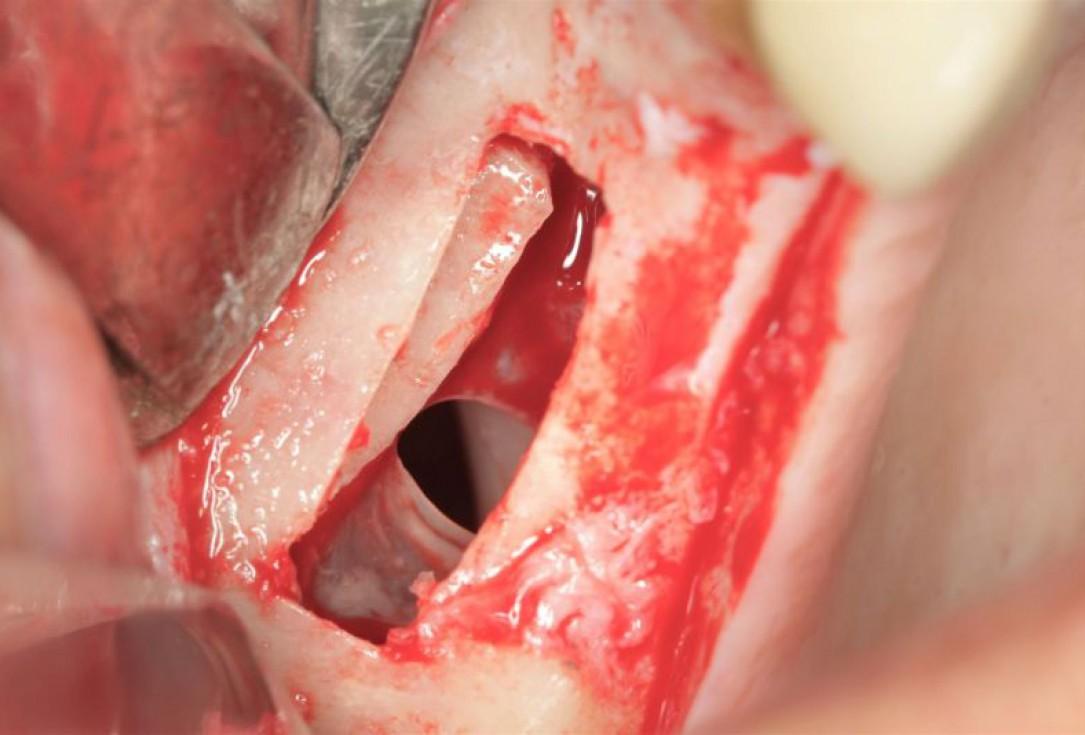 Lateral sinus lift one-stage with cerabone®, Jason® membrane & collagen fleece - Dr. D. Jelušić