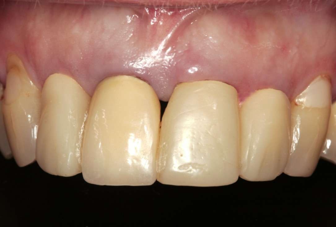 Restoration of all four incisors with two maxgraft® bonering - Dr. B Giesenhagen
