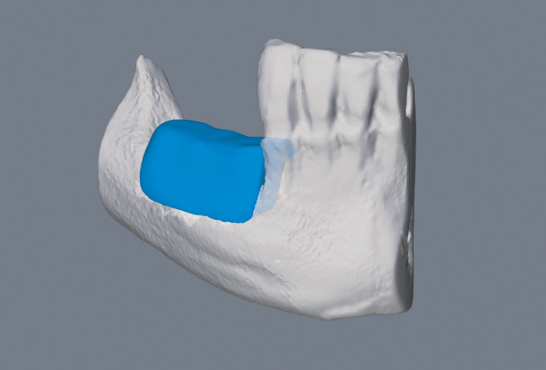 botiss maxgraft® bonebuilder for mandibular reconstruction - Clinical case