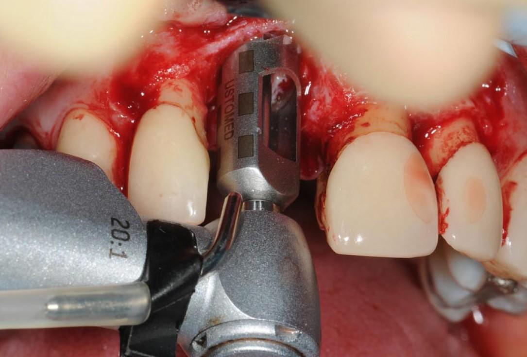 Restoration of buccal bone lamella in aesthetic zone with maxgraft® bonering -Amit Patel