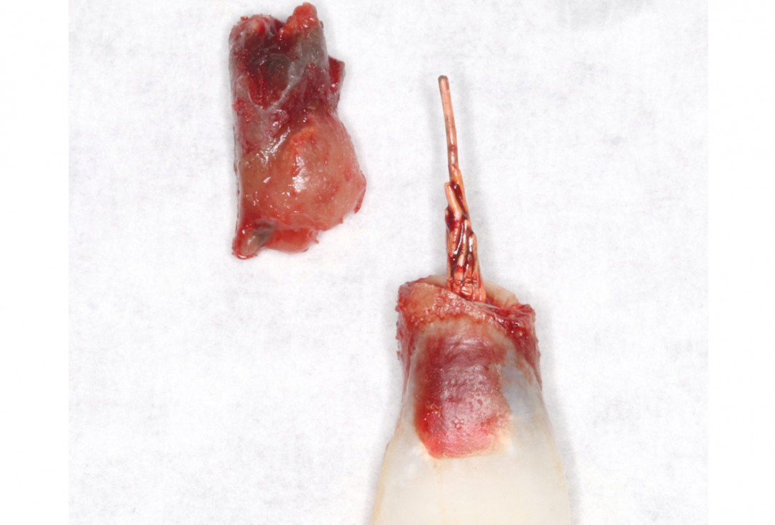 Type II socket defect grafted and repaired in a flapless way using Jason® membrane and maxgraft® cortico-cancellous- Dr. A. Jones