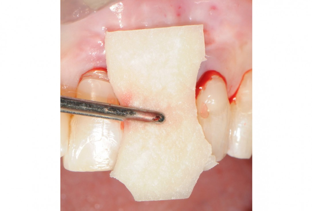 Tooth extraction and socket sealing with mucoderm® - Dr. A. Rossi