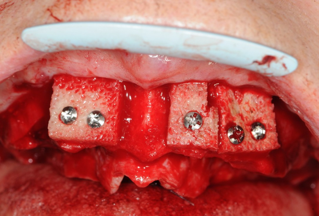 Reconstruction of maxillary ridge with maxgraft® block -Amit Patel