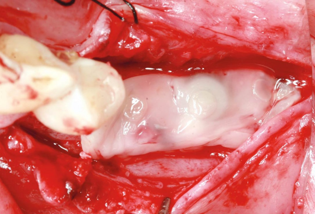 maxgraft® cortico at free-end situation in the mandible - J. Kielhorn