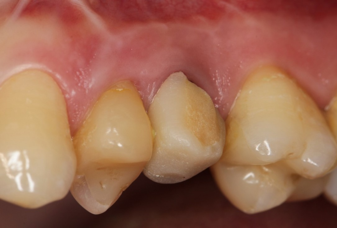 Socket preservation with collacone®  max - Dr. Michael Back