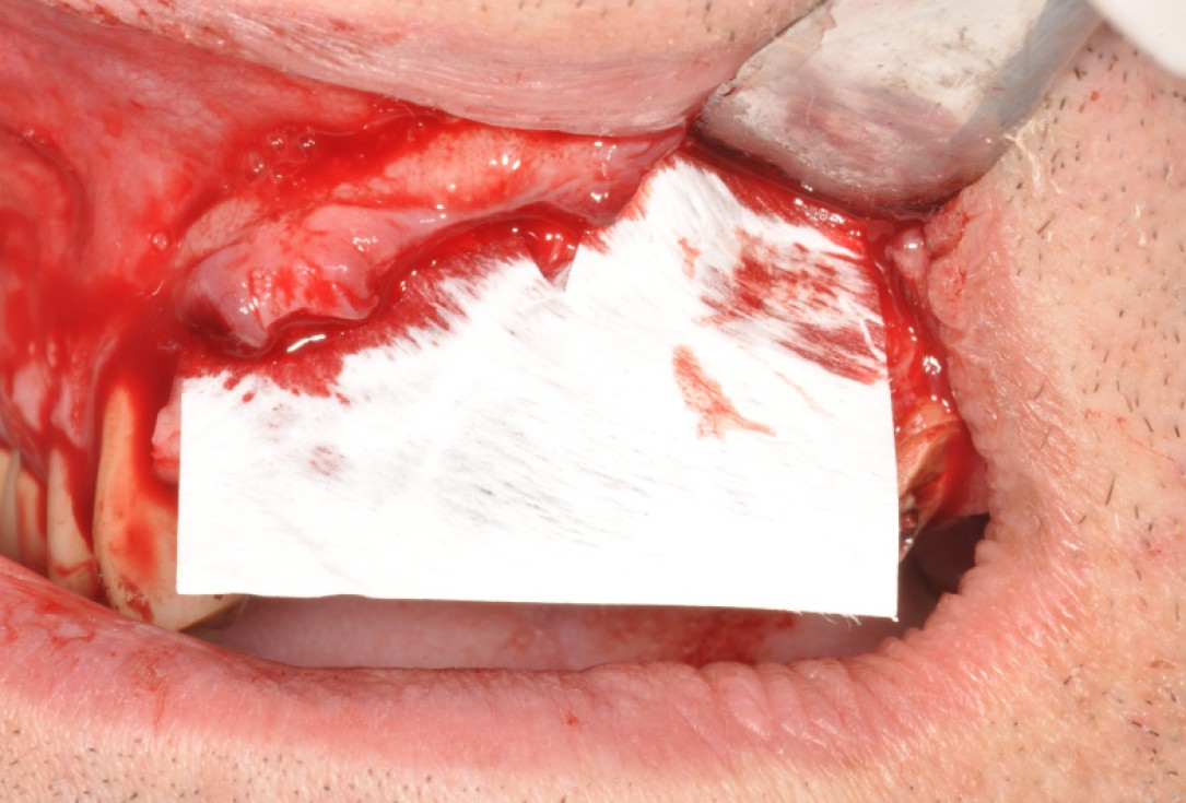 Ridge preservation with maxgraft®, mucoderm® and Jason® membrane - Dr. Fernando Rojas-Vizcaya