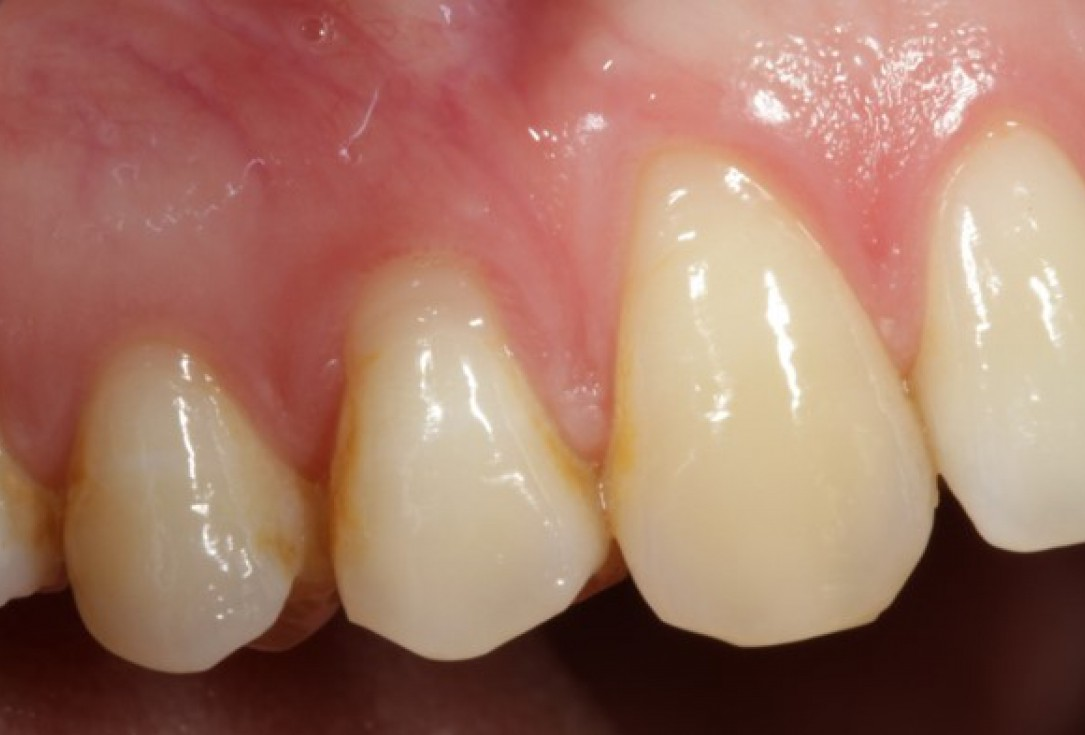 Multiple gingival recessions treated by CAF in conjunction with mucoderm® and Straumann® Emdogain® - Kasaj
