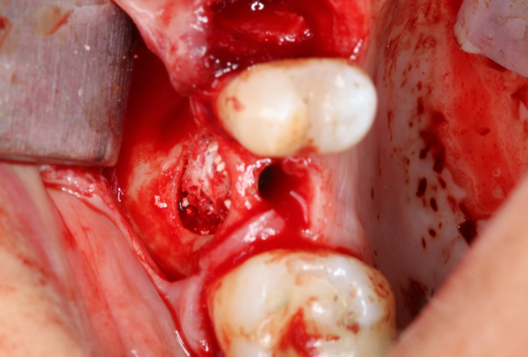 Sinus Floor Elevation with maxgraft® bonering - Dr. B. Giesenhagen