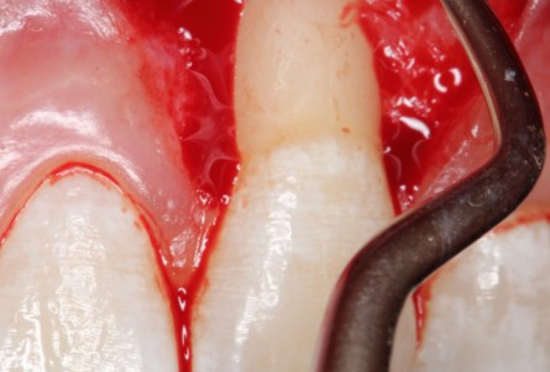 Isolated gingival recessions treated by CAF in conjunction with mucoderm® and Straumann® Emdogain® - Taba Jr