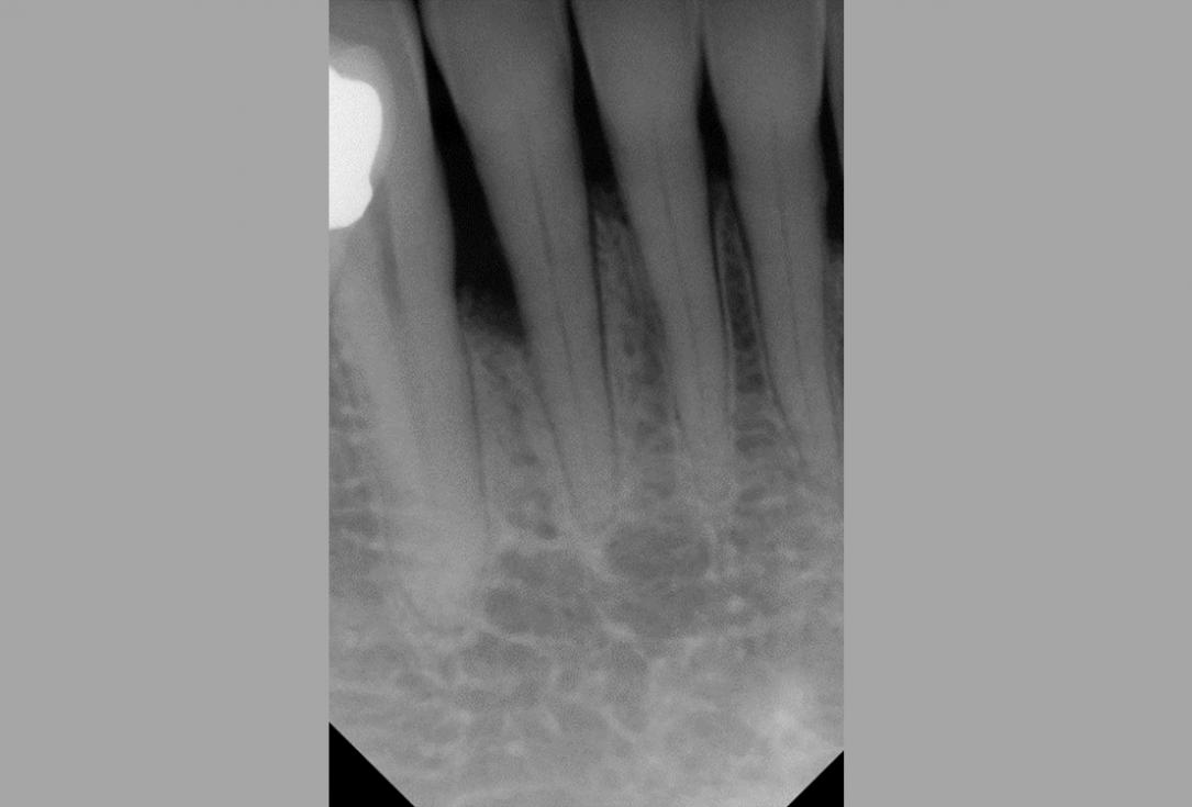 Non-contained intrabony defect treated using Straumann® Emdogain® and bone graft - Kasaj