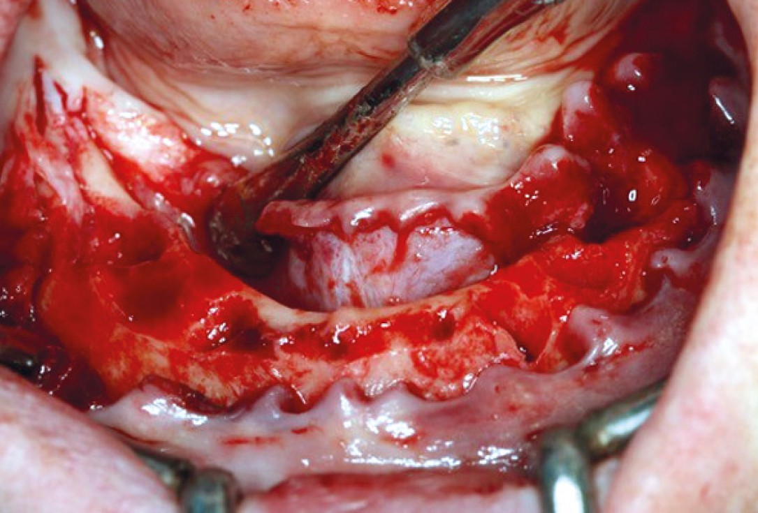 botiss maxresorb® inject for sinus lift - clinical case
