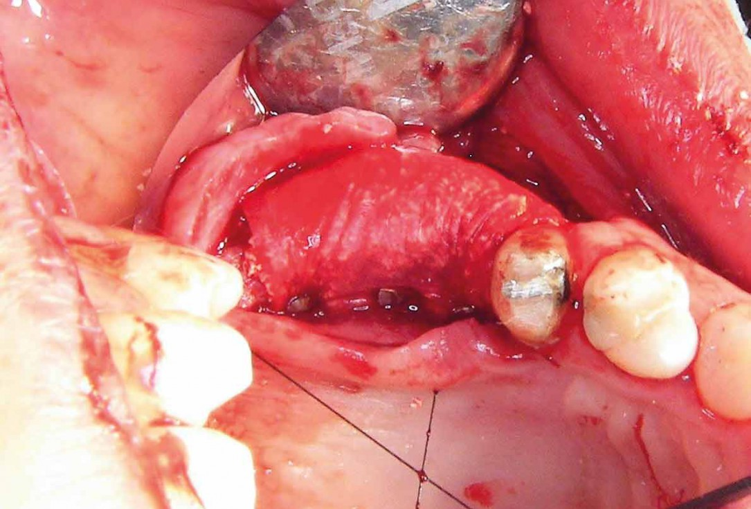 Two-stage sinus floor elevation and horizontal GBR using cerabone®, autologous bone and Jason® membrane - Dr. M. Blašković