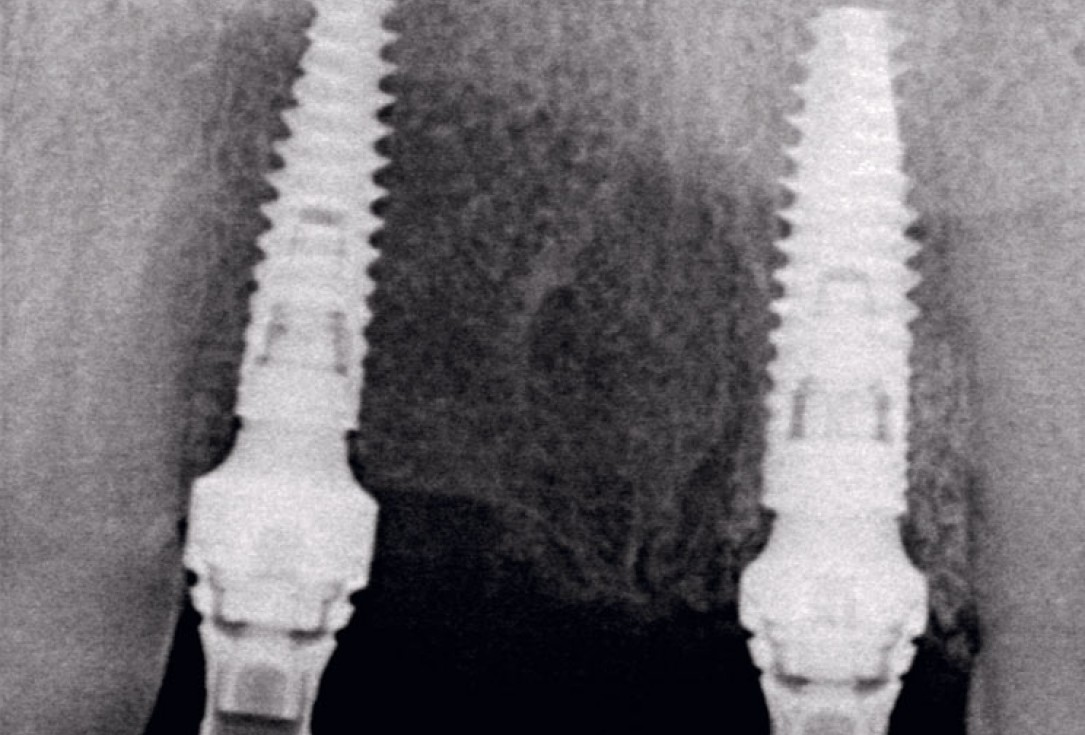 Socket preservation using cerabone® and Straumann® Emdogain® - Dr. S. Pelekanos