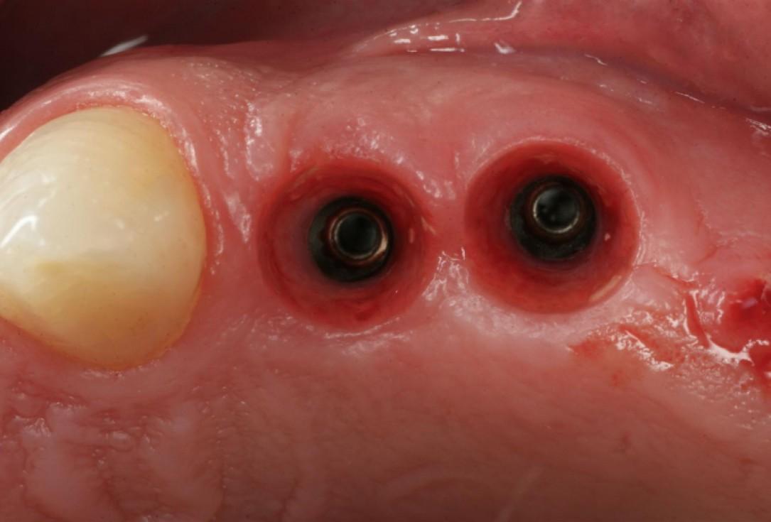 botiss cerabone® & collagen fleece for immediate implantation - Clinical case by Dr. D. Jelušić