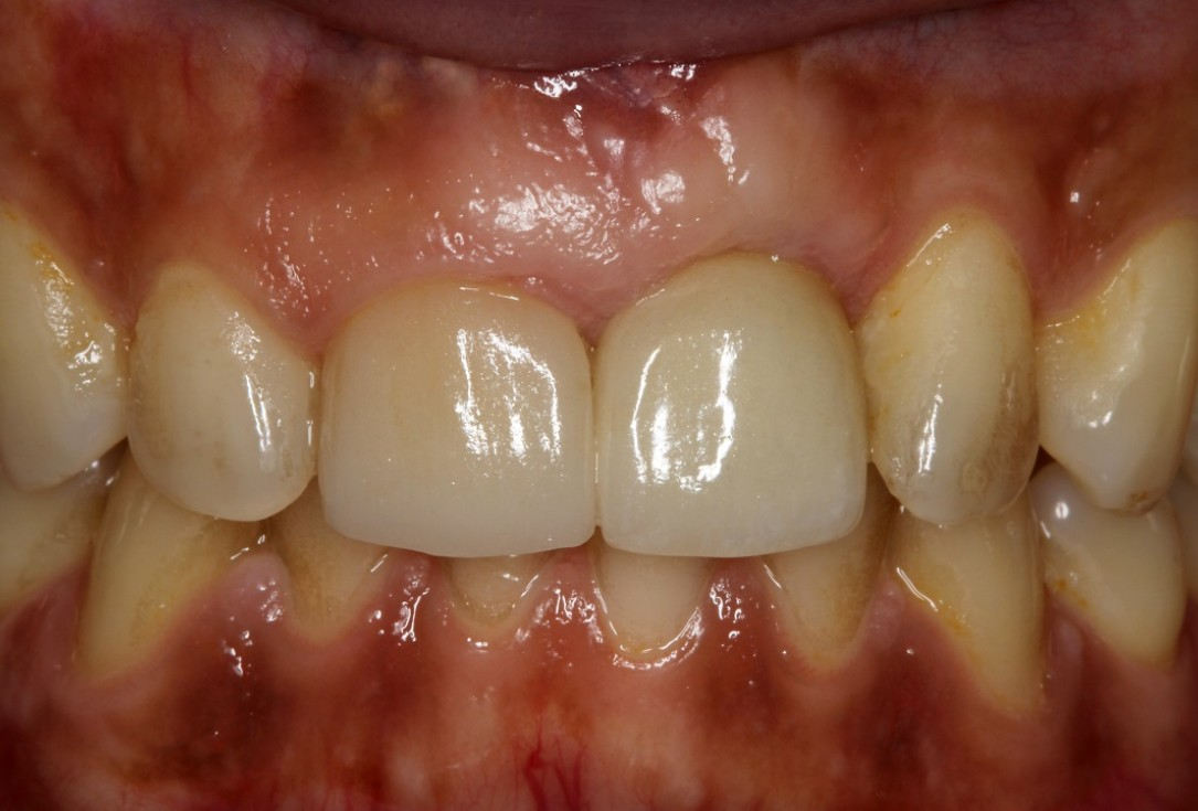 botiss cerabone® & Jason® membrane for block augmentation with autologous bone blocks - clinical case by Dr. S. Stavar