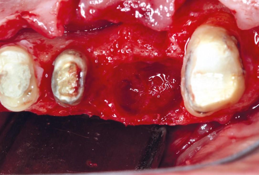 Ridge augmentation using cerabone®, Jason® membrane and Straumann® Emdogain® - Dr. S. Pelekanos