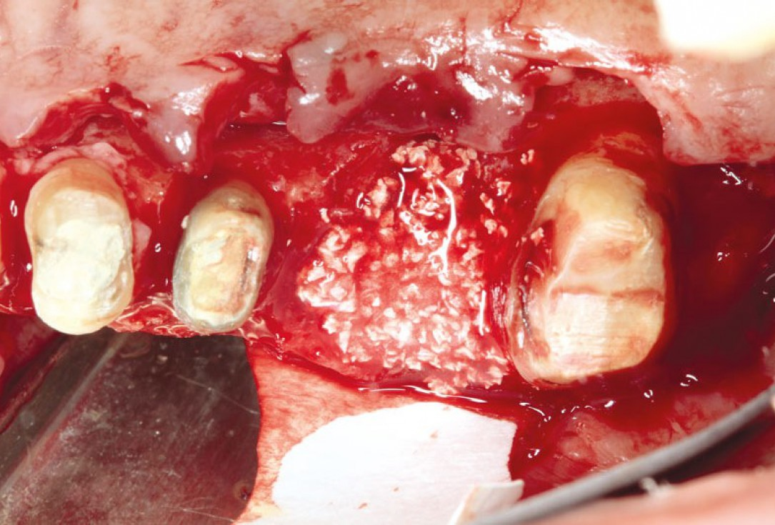 Ridge augmentation using cerabone®, Jason® membrane and Straumann® Emdogain® - Dr. S. Pelekanos