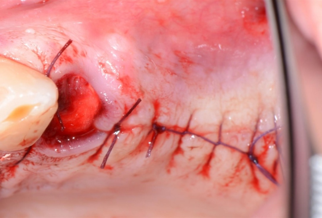 botiss cerabone®, Jason® membrane & collagen fleece for two-stage sinus lift - Clinical case by Dr. D. Jelušić