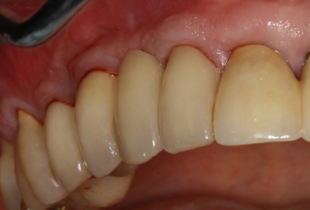 botiss cerabone® & Jason® membrane for GBR - Clinical case by Prof. Dr. Dr. D. Rothamel