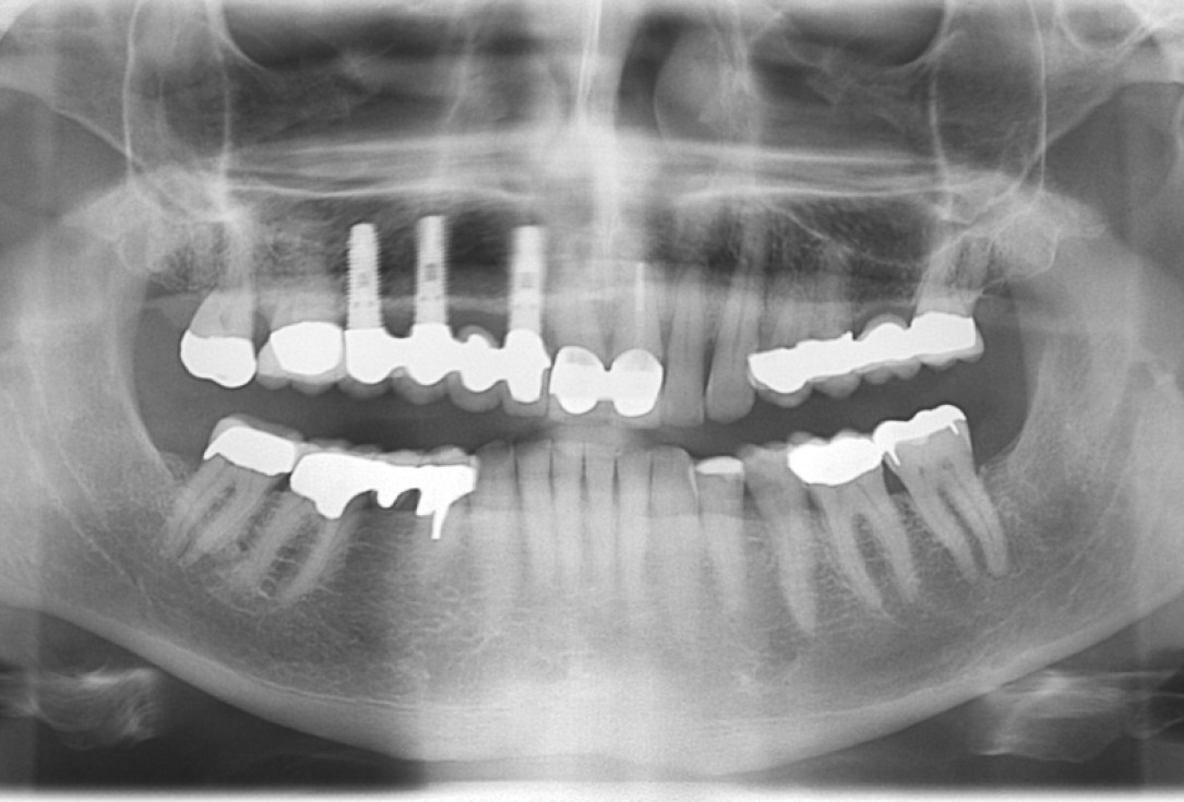 botiss cerabone® & Jason® membrane for GBR - Clinical case by Prof. Dr. Dr. D. Rothamel