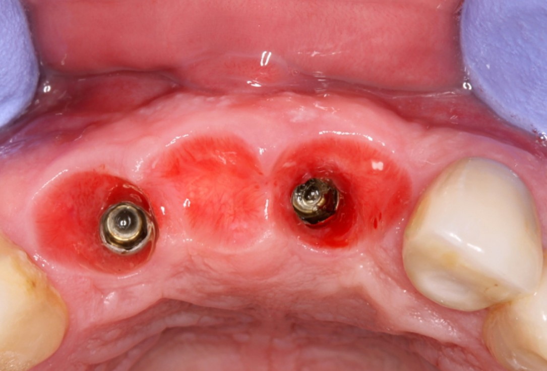 botiss cerabone® & Jason® membrane for GBR - clinical case by Dr. S. Stavar
